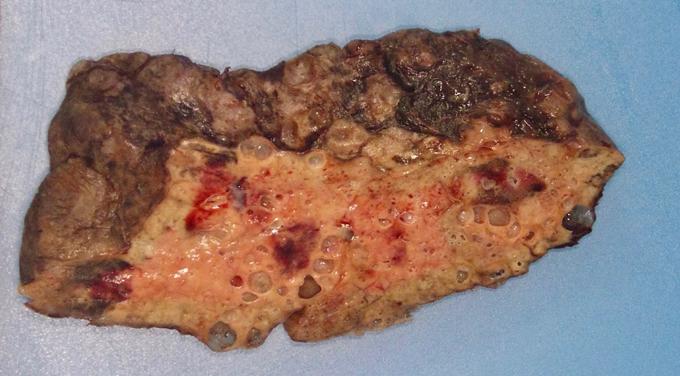 Ảnh Bệnh viện Northwestern Memoria. Phần phổi của bệnh nhân Covid-19 cho thấy tổn thương và sẹo vượt quá khả năng phục hồi.