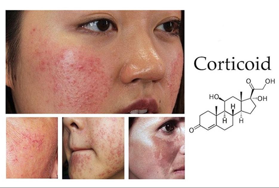 Một số hình ảnh da bị nhiễm Corticoid