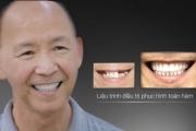 Cựu y tá 66 tuổi và bí mật khó ngờ trong hàm răng